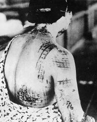 Un pacient japonez care suferă de sindromul radiaţiilor acute - tiparul kimono-ului s-a imprimat pe piele